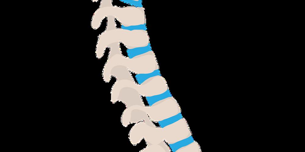 La Espondilolistesis: desplazamiento vertebral
